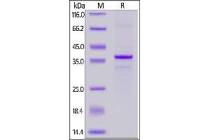 Image no. 2 for Membrane-Spanning 4-Domains, Subfamily A, Member 1 (MS4A1) (AA 1-297) (Active) protein (His tag) (ABIN7013536)