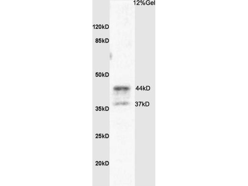 SDS-PAGE (SDS) image for anti-Coagulation Factor II (Thrombin) Receptor-Like 3 (F2RL3) (AA 320-343) antibody (ABIN673224)