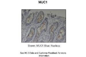 Image no. 3 for anti-Mucin 1, Cell Surface Associated (MUC1) (C-Term) antibody (ABIN2776819)
