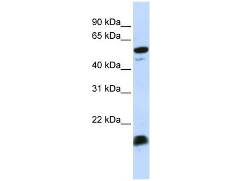 Western Blotting (WB) image for anti-C4BPA Antikörper (Complement Component 4 Binding Protein, alpha) (Middle Region) (ABIN2776798)