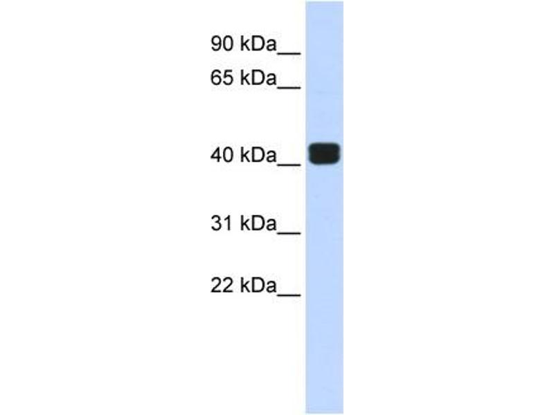 Western Blotting (WB) image for anti-TRIO and F-Actin Binding Protein (TRIOBP) (Middle Region) antibody (ABIN2775973)