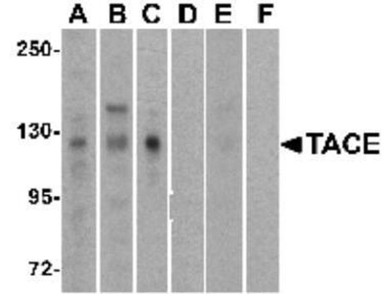 Western Blotting (WB) image for anti-ADAM Metallopeptidase Domain 17 (ADAM17) antibody (ABIN4357502)
