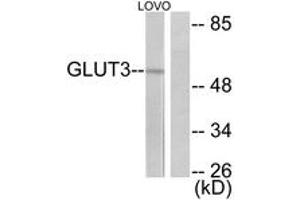 Image no. 1 for anti-Solute Carrier Family 2 (Facilitated Glucose Transporter), Member 3 (SLC2A3) (AA 447-496) antibody (ABIN1533295)