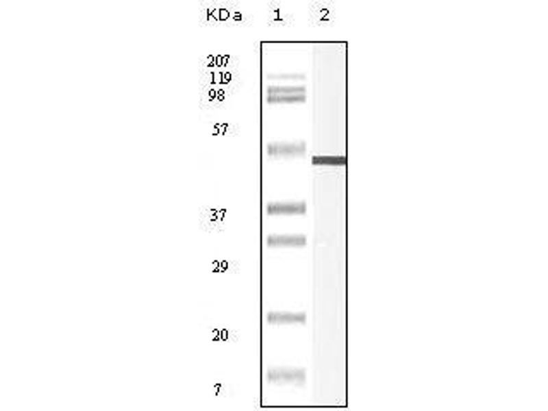 Western Blotting (WB) image for anti-Vimentin antibody (VIM) (ABIN969453)