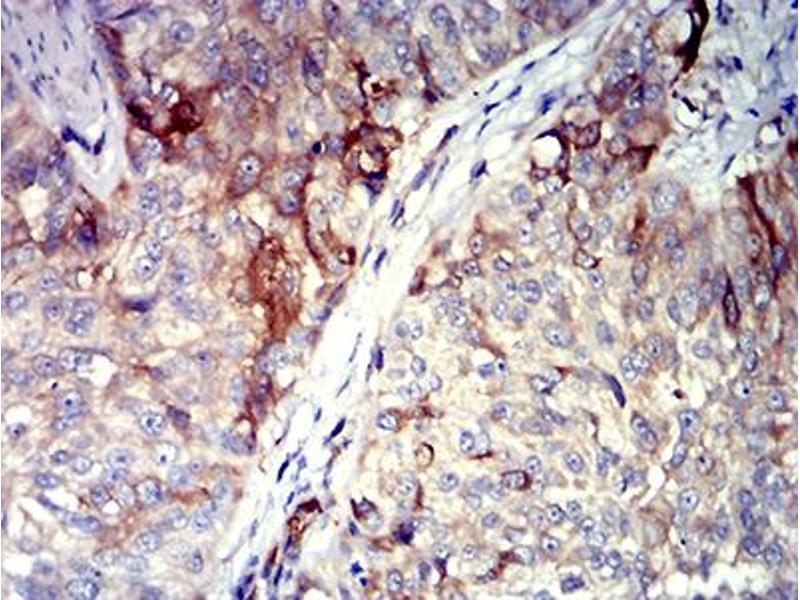 Immunohistochemistry (IHC) image for anti-Tumor Necrosis Factor (Ligand) Superfamily, Member 11 (TNFSF11) (AA 74-308) antibody (ABIN5611144)
