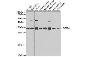 Image no. 1 for anti-C-Type Lectin Domain Family 7, Member A (CLEC7A) antibody (ABIN6138717)
