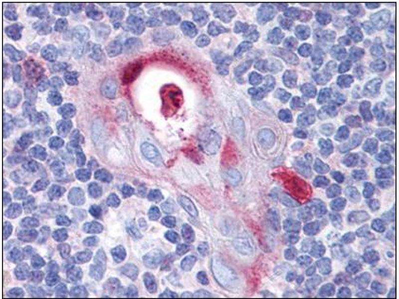 Immunohistochemistry (Paraffin-embedded Sections) (IHC (p)) image for anti-Spleen Focus Forming Virus (SFFV) Proviral Integration Oncogene Spi1 (SPI1) (Tyr118) antibody (ABIN615535)
