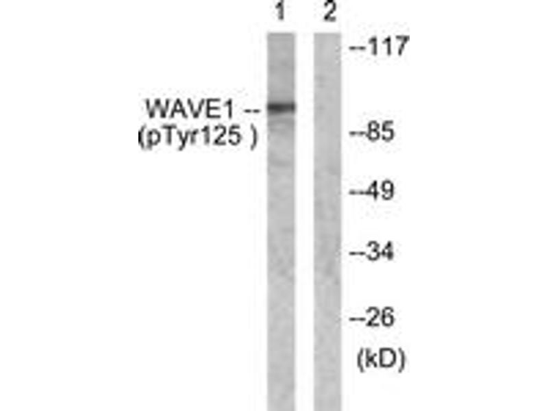 Western Blotting (WB) image for anti-WASF1 antibody (WAS Protein Family, Member 1) (pTyr125) (ABIN1531413)