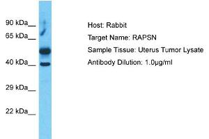 Image no. 1 for anti-Receptor-Associated Protein of The Synapse (RAPSN) (C-Term) antibody (ABIN5517286)