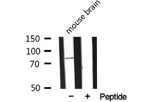 Image no. 1 for anti-MAP/microtubule Affinity-Regulating Kinase 2 (MARK2) antibody (ABIN6258272)