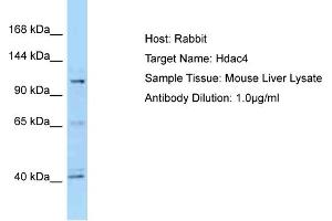 Image no. 3 for anti-Histone Deacetylase 4 (HDAC4) (C-Term) antibody (ABIN2781487)