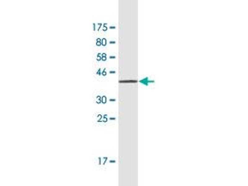 Image no. 2 for anti-Retinol Binding Protein 5, Cellular (RBP5) (AA 1-135) antibody (ABIN949709)