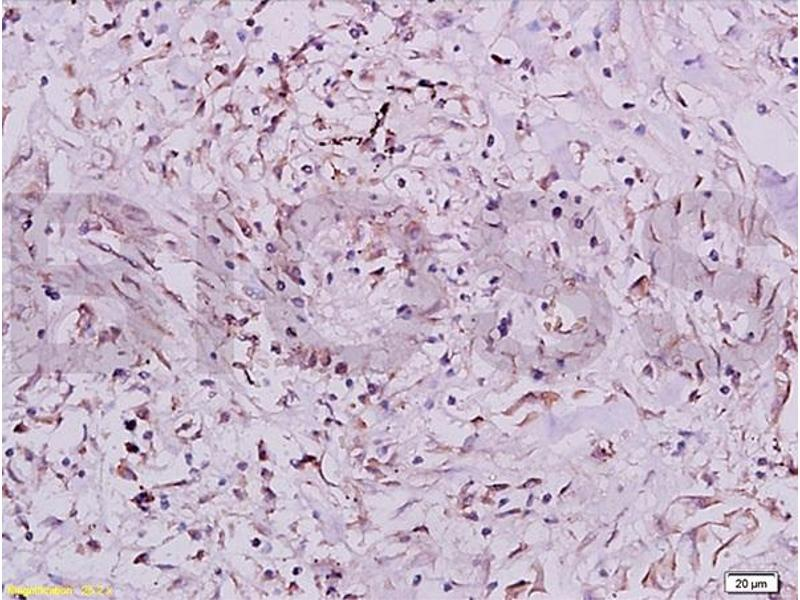Immunohistochemistry (IHC) image for anti-IGF1R antibody (Insulin-Like Growth Factor 1 Receptor) (AA 260-290) (ABIN726575)