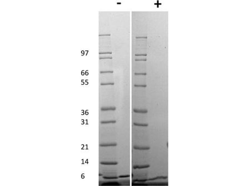 Image no. 2 for Chemokine (C-X-C Motif) Ligand 1 (Melanoma Growth Stimulating Activity, Alpha) (CXCL1) protein (ABIN6699667)
