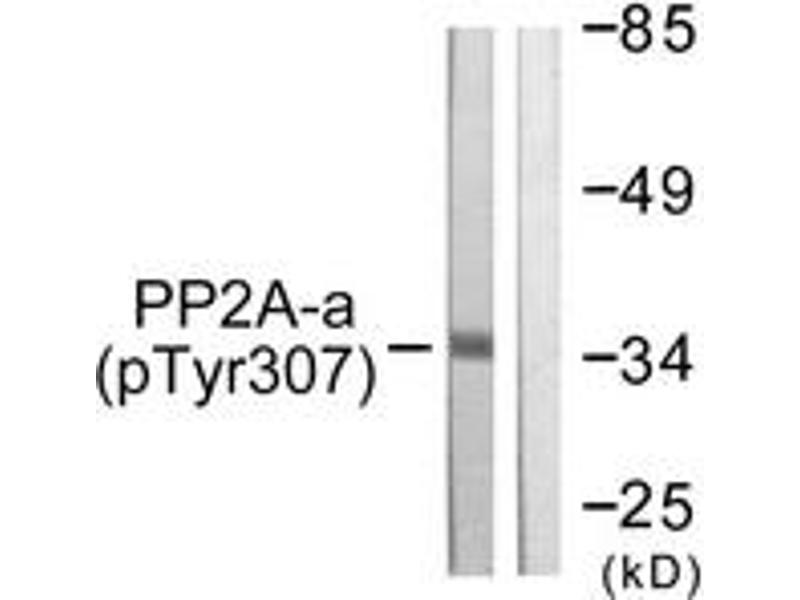 Western Blotting (WB) image for anti-Protein Phosphatase 2, Catalytic Subunit, alpha Isozyme (PPP2CA) (AA 260-309), (pTyr307) antibody (ABIN1531377)