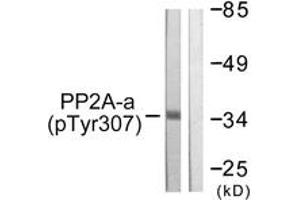 Western Blotting (WB) image for anti-Protein Phosphatase 2, Catalytic Subunit, alpha Isozyme (PPP2CA) (pTyr307) antibody (ABIN1531377)