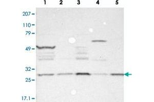 Image no. 2 for anti-Family with Sequence Similarity 109, Member B (FAM109B) antibody (ABIN5577716)