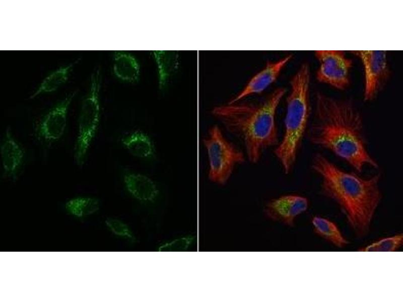 Immunofluorescence (IF) image for anti-Transcription Factor A, Mitochondrial (TFAM) (Center) antibody (ABIN4336024)