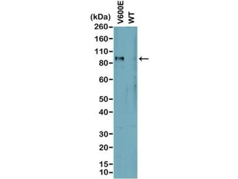 Image no. 1 for anti-Braf V600E antibody (ABIN6560108)