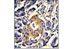 Image no. 2 for anti-Signal Recognition Particle 72kDa (SRP72) (AA 126-156), (Middle Region) antibody (ABIN453397)