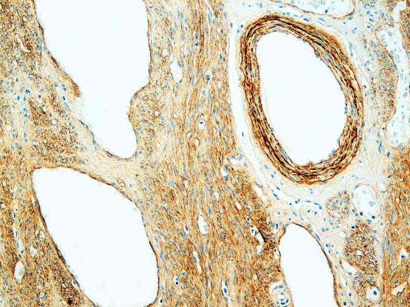 Immunohistochemistry (IHC) image for anti-Tenascin C (TNC) antibody (ABIN108414)