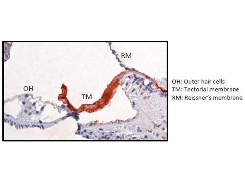 Immunohistochemistry (IHC) image for anti-Carcinoembryonic Antigen-Related Cell Adhesion Molecule 16 (CEACAM16) antibody (ABIN1381739)