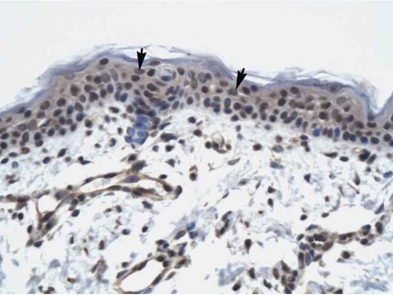 Immunohistochemistry (IHC) image for anti-RNA Polymerase II TBP-Associated Factor Subunit G (TAF9) (N-Term) antibody (ABIN927497)
