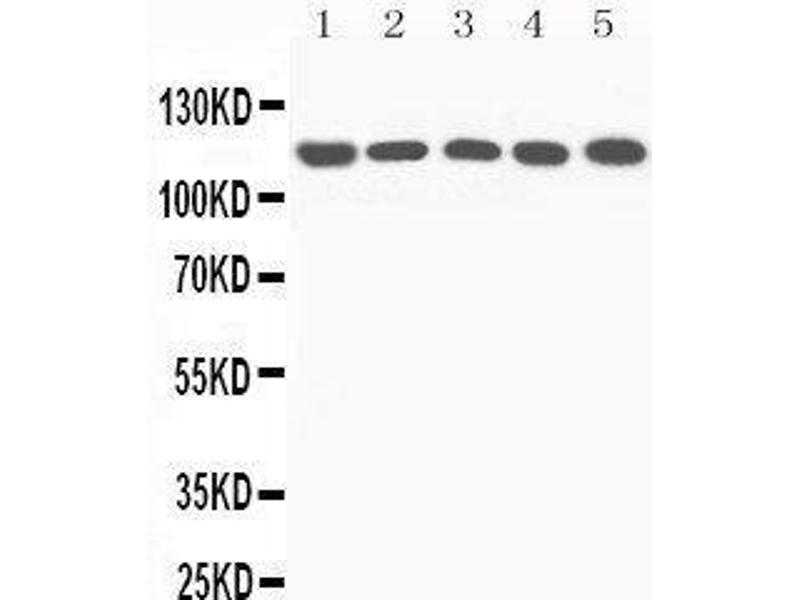 Western Blotting (WB) image for anti-Complement Component 5 (C5) (AA 1-18), (N-Term) antibody (ABIN3044294)