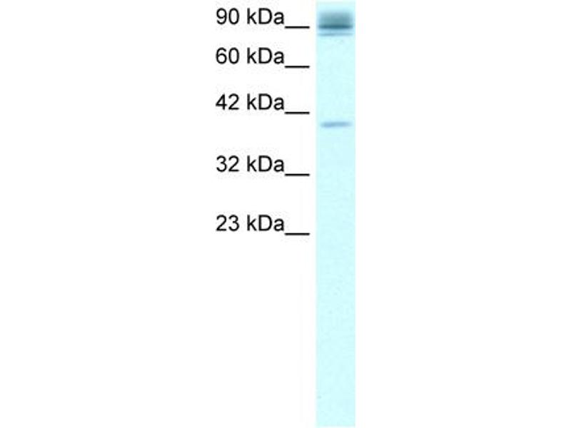 Western Blotting (WB) image for anti-NFKB2 antibody (Nuclear Factor of kappa Light Polypeptide Gene Enhancer in B-Cells 2 (p49/p100)) (C-Term) (ABIN182483)