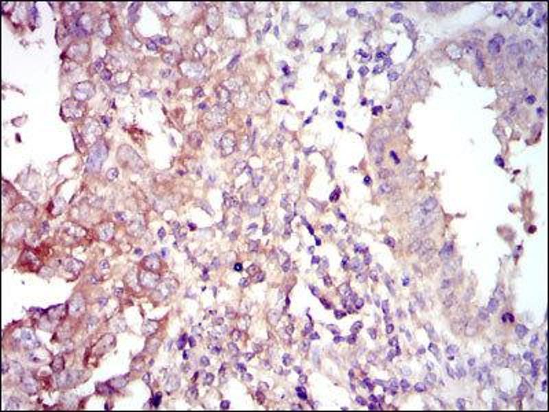 Immunohistochemistry (IHC) image for anti-Forkhead Box O1 (FOXO1) antibody (ABIN1845870)