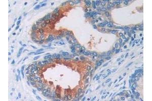 Image no. 1 for anti-Angiotensinogen (serpin Peptidase Inhibitor, Clade A, Member 8) (AGT) (AA 35-485) antibody (ABIN2907684)