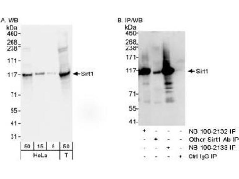 Western Blotting (WB) image for anti-SIRT1 antibody (Sirtuin 1) (C-Term) (ABIN151572)