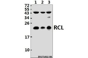 Image no. 1 for anti-Chromosome 6 Open Reading Frame 108 (C6orf108) (AA 21-70) antibody (ABIN6713491)