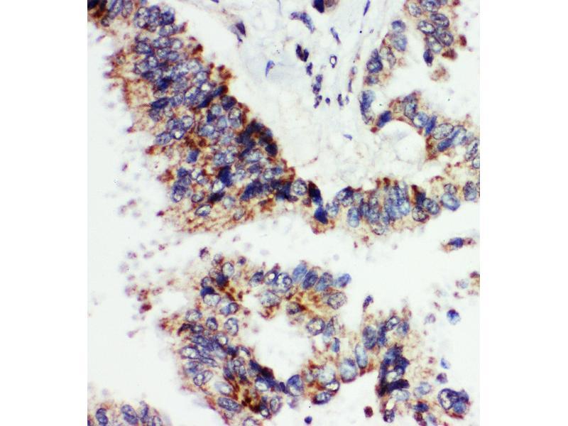 Immunohistochemistry (IHC) image for anti-Angiopoietin 1 antibody (ANGPT1) (AA 225-239) (ABIN3044373)