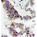 Anti-Angiopoietin 1 antibody,  IHC(P) IHC(P): Human Lung Cancer Tissue