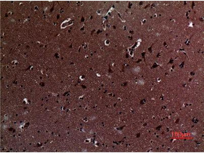 Immunohistochemistry (IHC) image for anti-IL12A Antikörper (Interleukin 12 alpha) (Internal Region) (ABIN3187648)