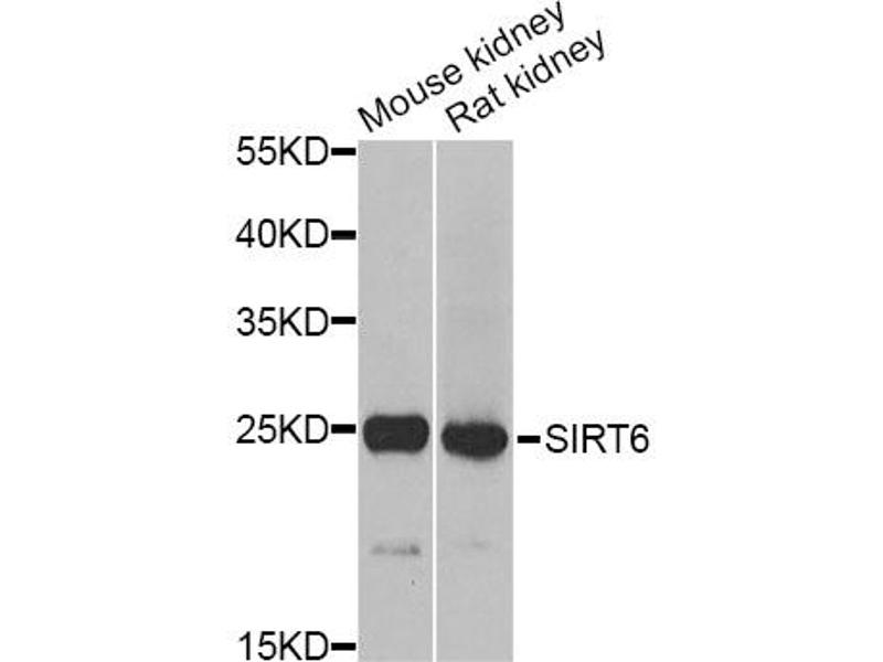 Image no. 1 for anti-Methionine Sulfoxide Reductase A (MSRA) antibody (ABIN6567489)