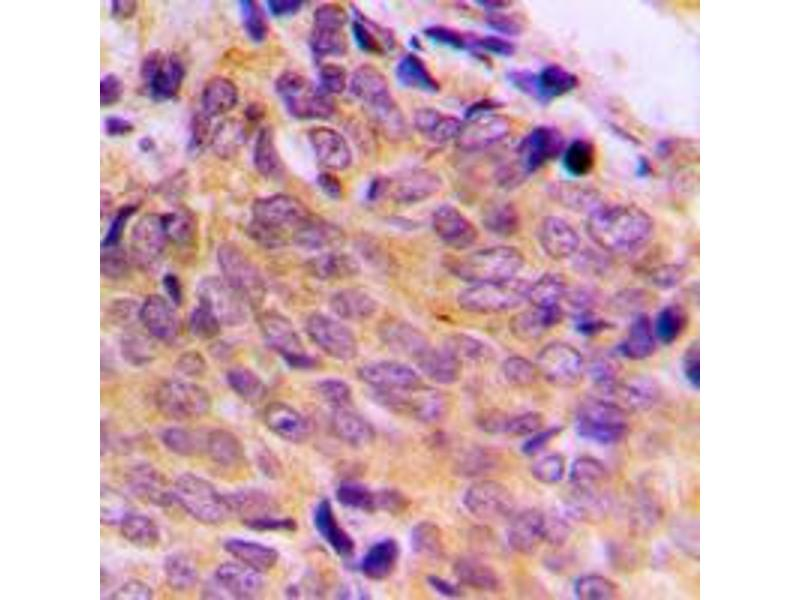 Immunohistochemistry (IHC) image for anti-BAX antibody (BCL2-Associated X Protein) (Center) (ABIN2705573)