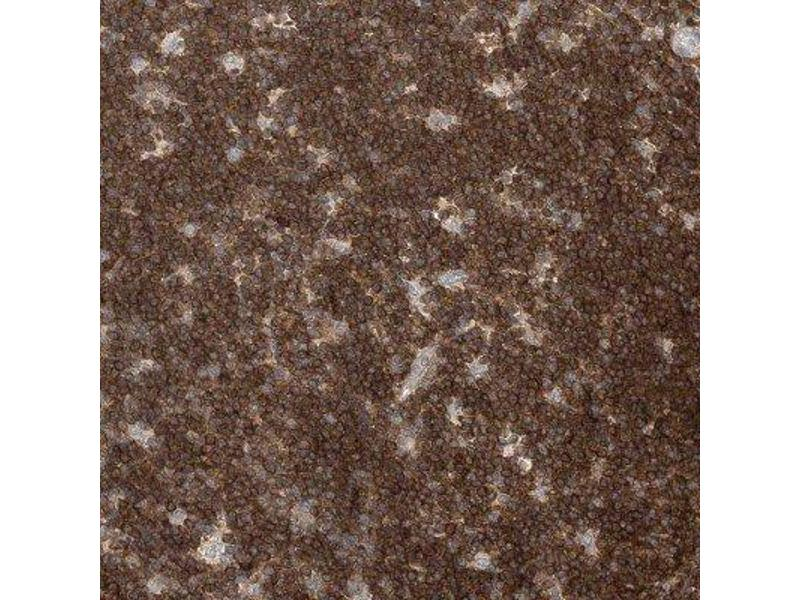 Immunohistochemistry (IHC) image for anti-Zinc Finger CCCH-Type Containing 12A (ZC3H12A) antibody (ABIN4333223)