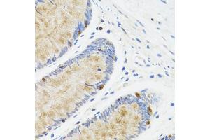 Immunohistochemistry (Paraffin-embedded Sections) (IHC (p)) image for anti-Signal Transducer and Activator of Transcription 4 (STAT4) antibody (ABIN2970240)