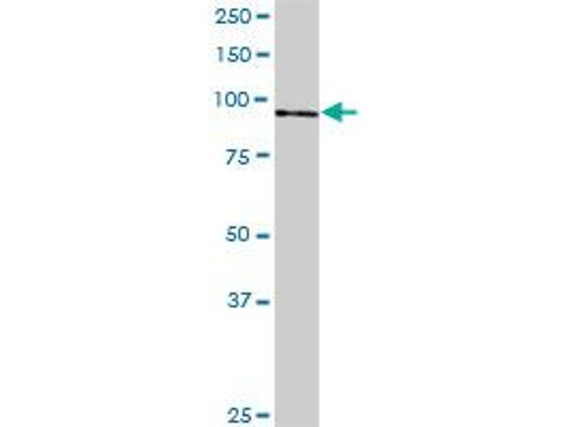 Western Blotting (WB) image for anti-NOP14 Nucleolar Protein Homolog (Yeast) (Nop14) (AA 1-806), (full length) antibody (ABIN522068)