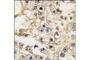 Immunohistochemistry (Paraffin-embedded Sections) (IHC (p)) image for anti-EPH Receptor A10 (EPHA10) (N-Term) antibody (ABIN359808)