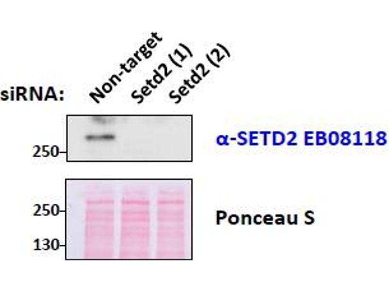Image no. 1 for anti-SET Domain Containing 2 (SETD2) (Internal Region) antibody (ABIN238587)