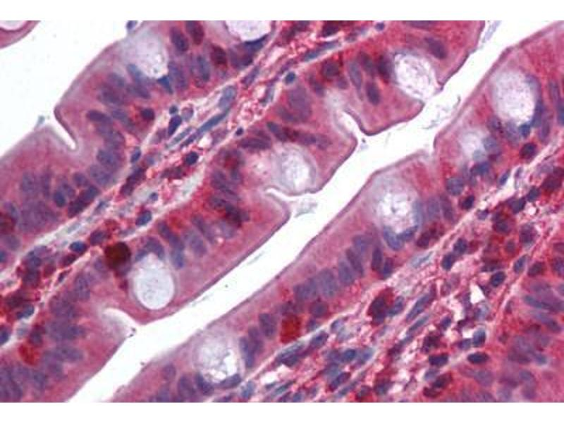 Immunohistochemistry (Paraffin-embedded Sections) (IHC (p)) image for anti-TNF Receptor-Associated Factor 2 (TRAF2) (N-Term) antibody (ABIN214009)