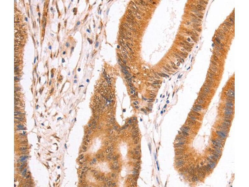 Immunohistochemistry (IHC) image for anti-Tax1 (Human T-Cell Leukemia Virus Type I) Binding Protein 1 (TAX1BP1) antibody (ABIN2428865)
