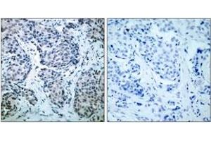 Immunohistochemistry (IHC) image for anti-Mitogen-Activated Protein Kinase Kinase 4 (MAP2K4) (pThr261), (AA 227-276) antibody (ABIN1531968)