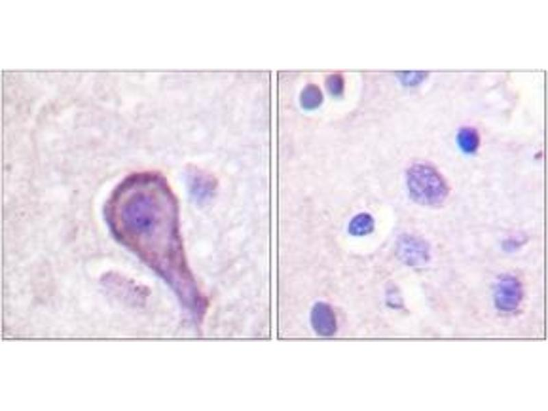 Immunohistochemistry (Paraffin-embedded Sections) (IHC (p)) image for anti-Rhodopsin antibody (RHO) (AA 299-348) (ABIN1532407)