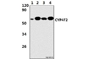 Image no. 1 for anti-Cytochrome P450, Family 4, Subfamily F, Polypeptide 2 (CYP4F2) (AA 36-90) antibody (ABIN6711464)