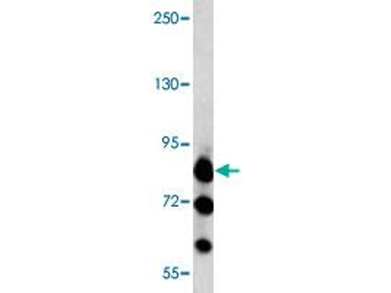 Western Blotting (WB) image for anti-MAP/microtubule Affinity-Regulating Kinase 3 (MARK3) antibody (ABIN543014)