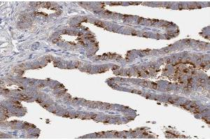 Image no. 1 for anti-Deleted in Lung and Esophageal Cancer 1 (DLEC1) antibody (ABIN6261310)